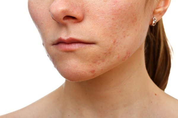 Dairy and Sugar Linked to Acne